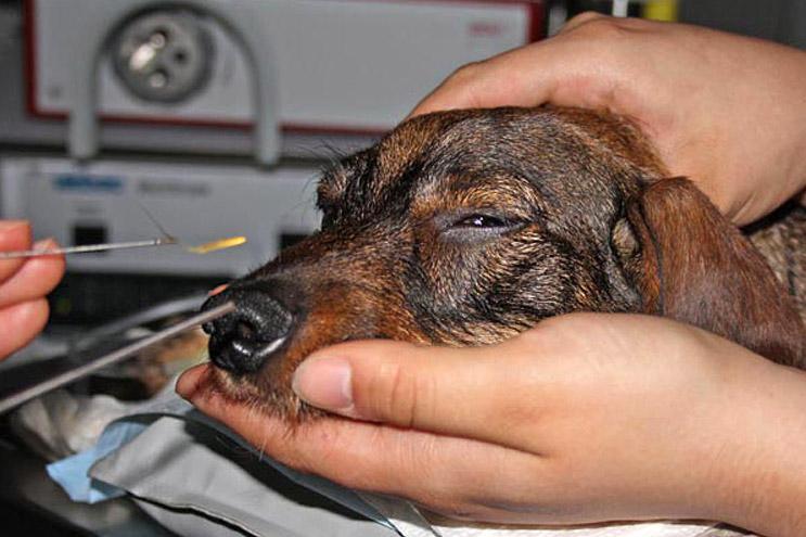 Fremdkörperentfernung (Granne) aus der Nase mittels Rhinoskopie